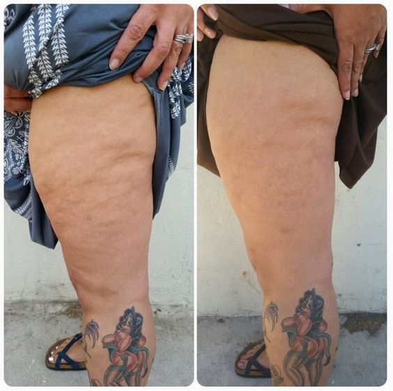 More amazing results! Get your own results www.tanyamk.nrtium.com