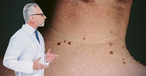 boka lympostasis kezelés