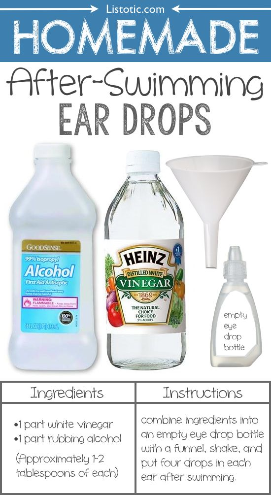 To prevent swimmer's ear, put about 4 drops of this homemade ear drop solution (1 part vinegar to 1 part alcohol) in each ear after a day in the water. This is not for use if you already have an existing ear infection– the alcohol simply helps dry out your ears while the vinegar helps combat the build-up of bacteria. If desired, insert cotton balls into ear to hold in ear for a bit.