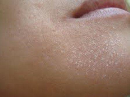 6 cách trị da khô bong tróc da mặt tại nhà hiệu quả 100%