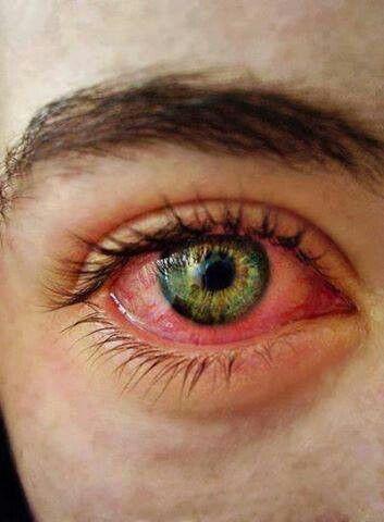Getting High Eyes