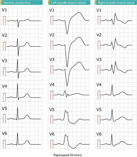 Image Result For Complete Heart Block 12 Lead Ecg Heart Blocks Math Ekg