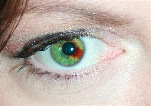 Sectoral heterochromia - the red brown is kind of creepy ...