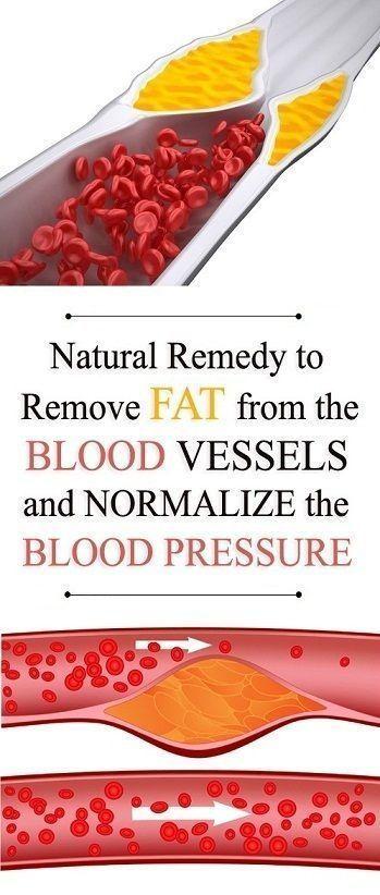 0420b841ae0e6a314788496fd2d8bf6e - How To Get Rid Of Fat In Blood Vessels