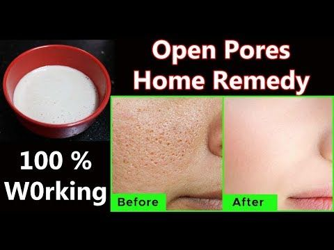 Open Pores Home Remedy Close Large Pores Or Open Pores On Face Tamil Beauty Tips In Tamil Youtube Open Pores On Face Large Pores How To Remove Pores