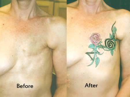 tatouages apres mastectomie 14   Tatouages après mastectomie étonnants   tatouage tatoo sein photo mastectomie image cancer avant après abla...