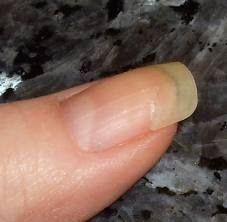 Come riparare un unghia rotta   MoNaLandiA