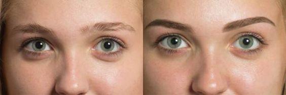 Las cejas son el marco de la cara define nuestro rasgos, y realmente nos ayuda a vernos muy bellas. Anuncios Es muy pero muy importante mantenerlas impecables y hermosas, muchas veces esto no es nada fácil dependiendo de su forma natural,y por ello la mayoría de las veces es recomendable ir a un especialista. Sin …
