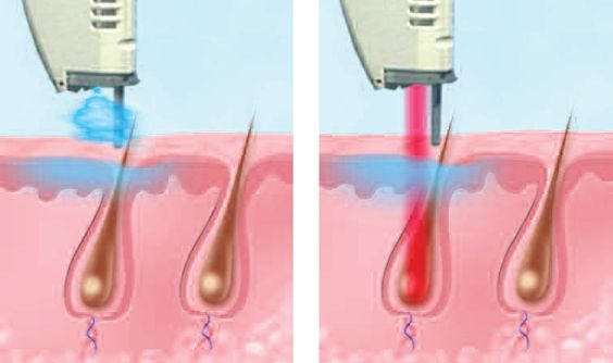 How does the V-Beam Perfecta Laser work? #skin #dermatologist #laser #redness
