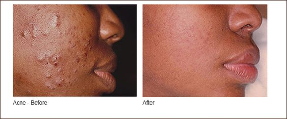 acne adult african american photo skin