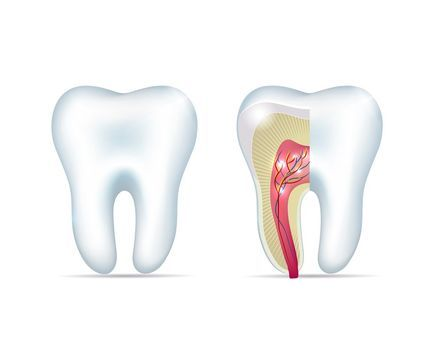 Root canal therapy can treat advanced tooth decay, helping you avoid the need for extraction. - Kansas City Restorative Dentist - John P. Goodman, DDS