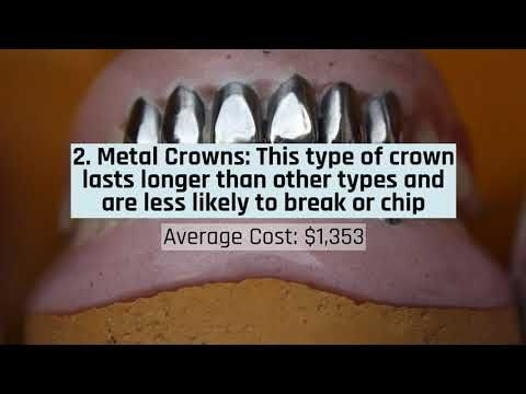 Https Creeksidedds Com Crowns So How Much Does A Dental Crown
