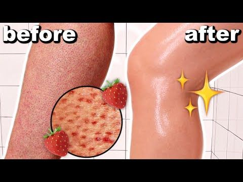 04b55ceaca19629ba050dd5f1c281b1f - How To Get Rid Of Strawberry Spots On Legs