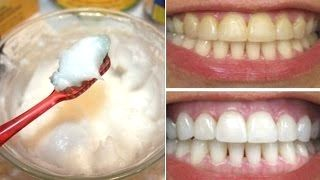 How To Whiten Your Yellow Teeth Naturally At Home (दांत चमकाना)/Tooth Whitening Learn How To Make Teeth Whitening Remedy At Home, This Remedy Will Whiten Your Yellow Teeth. Tooth Whitening, Whiten Your Teeth Naturally At home, Teeth Whitening Home Remedy, दांत चमकाना. This remedy is very effective for teeth whitening but please don't over use this remedy otherwise it can damage your enamel it;s safe to use… Read More » The post How To Whiten Your Yellow Teeth Naturally At Hom..