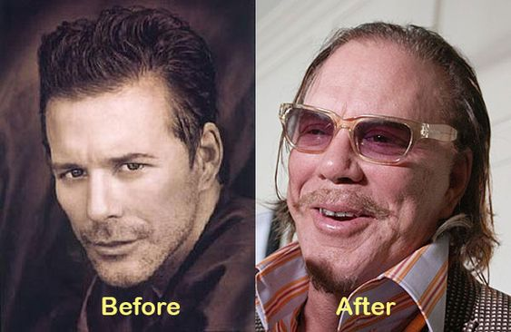 The 25 Worst Aging Actors in Hollywood | Celebrity Gossip and Entertainment News | VH1 Celebrity Mickey Rourke:
