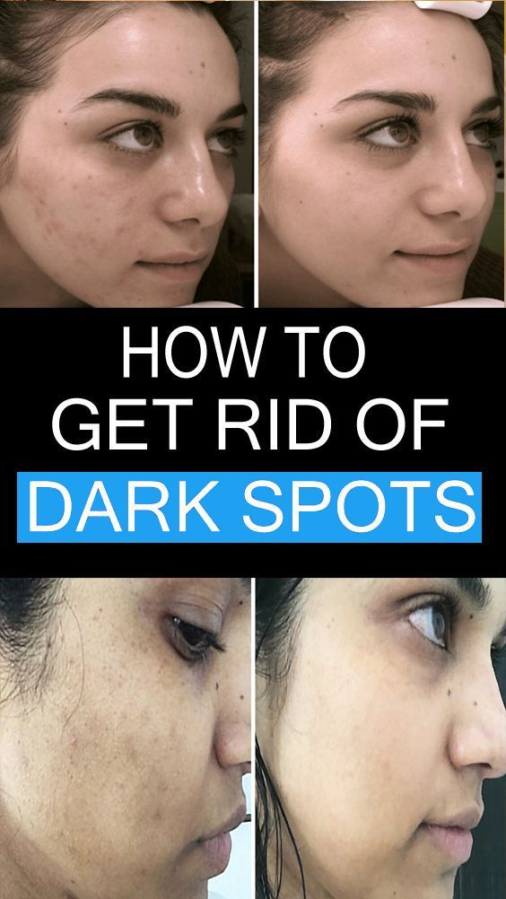 These Spots Usually Appear On Your Face Legs And Arms They Can Also Appear As A Result Of Excessive E In 2020 Skin Spots Dark Spots On Skin Natural Skin Moisturizer