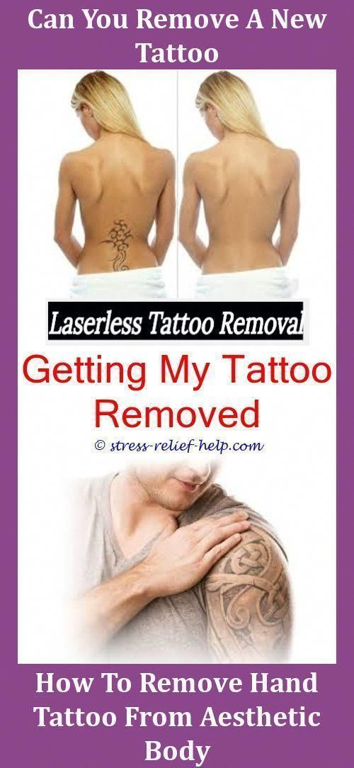 Picosure Laser Tattoo Removal Laser Tattoo Removal After 3 Sessions Professional Tattoo Removal How Do Tattoo Laser Tattoo Removal Laser Tattoo Tattoo Removal