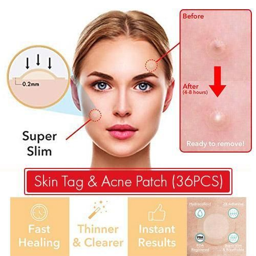 Skin Tag Acne Patch 36 Pcs Skin Tag Acne Skin Tag Removal