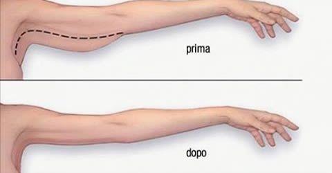 come assottigliare le braccia