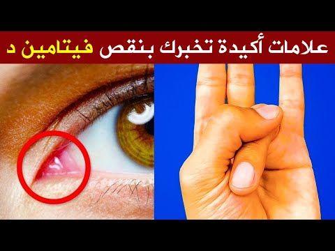 1 علامات خفية وخطيرة تخبرك أنك تعاني من نقص فيتامين د وأهم أعراض نقصه وطرق علاجه وفق أحدث الدراسات Youtube Medical Technology Medical Health Food