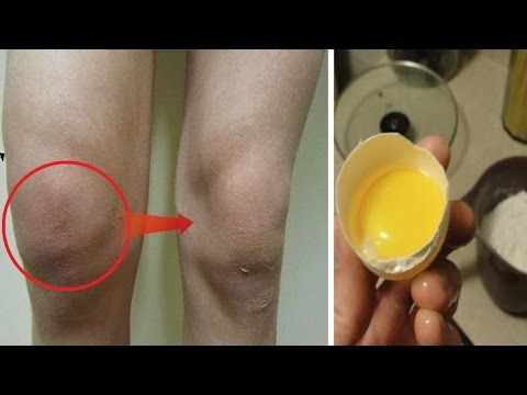 How To Get Rid Of Swelling And Fluid In Knee