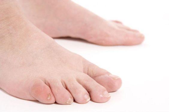 Micosi delle unghie: cura e prevenzione