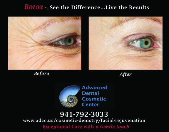 Botox - See the difference, live the results.