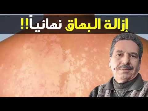 إزالة البهاق نهائيا تصبغ البشرة بسبب الشمس الحل الدكتور جمال الصقلي Youtube Incoming Call Screenshot