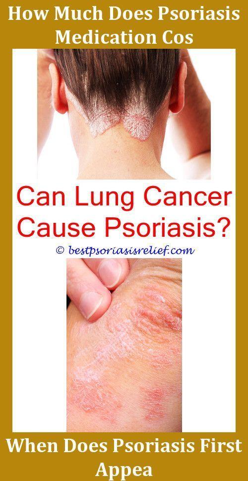 can psoriasis go away