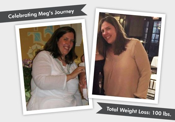 We are celebrating Meg's Before & After Lap-Band WLS. Meg has lost 100 pounds and feels great. Read her WLS journey and what her daily motto is!