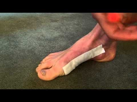 How to prevent blisters when hiking - YouTube