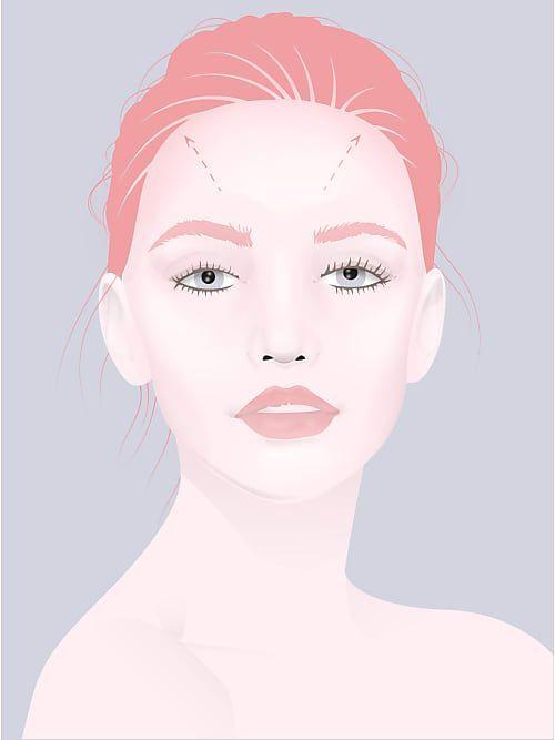 Geheimratsecken Frauen Tipps Frisurentricks Geheimratsecken Frauen Frisur Geheimratsecken Kurze Haare Mit Stufen