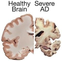 Paleo health alzheimer's disease v health brain