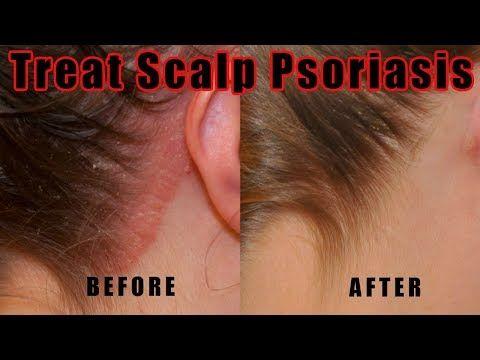 scalp psoriasis treatment tölgy kéreg pikkelysömör kezelése