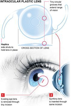 Revolutionary lens restores complete vision to ageing eyes   New implant improves vision for older people struggling with cataracts, astigmatism, or long and short-sightedness. [Eyes: http://futuristicnews.com/tag/eye/ Contact Lenses: http://futuristicnews.com/tag/contact-lenses/]