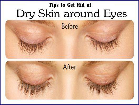 how to get rid of xanthelasma around eyes