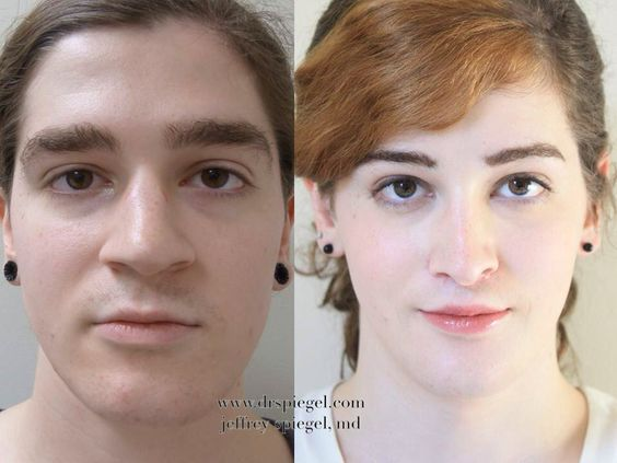 facial feminization and sex change