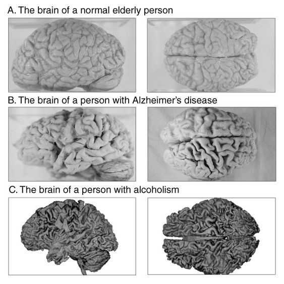 how alzheimers disease affects the brain Alzheimer's disease is caused by parts of the brain shrinking (atrophy), which affects the structure and function of particular brain areas.
