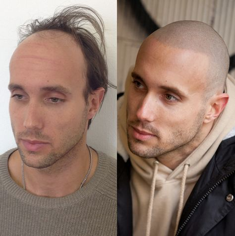 Shining a light on shiny scalps... #Skalp #blog #hairloss #SMP #baldness #style