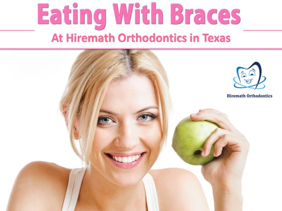 Easy Foods To Eat Your First Week With Braces