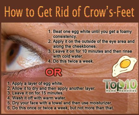 Prev post1 of 3Next Crow's-feet, also known as 'laugh lines' and 'character lines,' are clusters of tiny wrinkles and fine lines that form around the outer corners of the eyes. Crow's-feet develop with age, usually starting in the mid- to late-30s. Production of collagen and elastin, two proteins responsible for your skin's elasticity, lessens with