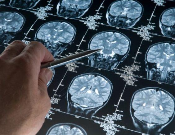 La proteína del alzhéimer comienza a acumularse desde los 20 años