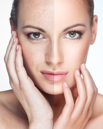 Chemical peels!  Luxury Med Spa in Farmington Hills, MI is a GREAT place to pamper yourself!  Call (248) 855-0900 to schedule an appointment or visit our website medicalandspa.com for more information!
