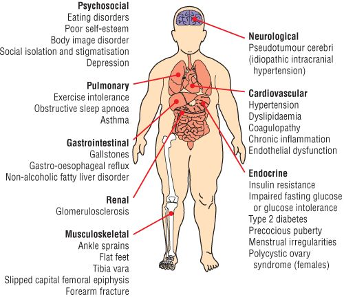 Complications Of Obesity