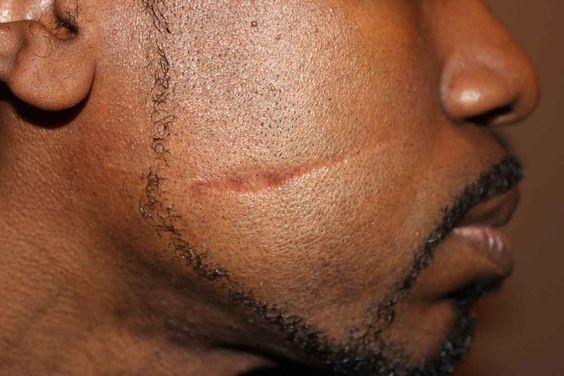 Secondary Skin Lesion Scar Skin Lesions Pinterest
