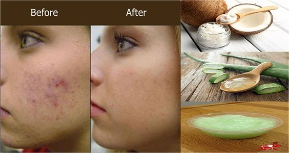 Put This Aloe Vera And Coconut Oil Face Mask Twice a Week And Your Age Spots, Acne And Scars Will Magically Disappear!