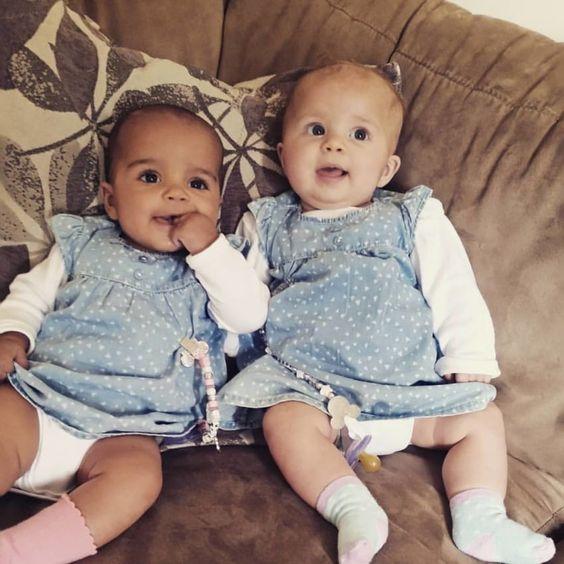 """Toen de twee meisjes in april 2015 werden geboren, waren ze bijna identiek qua uiterlijk. Maar naarmate de weken verstreken, veranderden ze. Myla en Anaya zijn namelijk een twee-eiige tweeling, waarbij twee afzonderlijke eitjes bevrucht zijn door twee zaadcellen, en door twee verschillende placenta's in de buik werden gevoed.  """"Na twee weken, was het duidelijk dat Myla een donkere huid en bruine ogen heeft van haar vader, terwijl Anaya op haar moeder lijkt, met een lichte huid, bruin"""