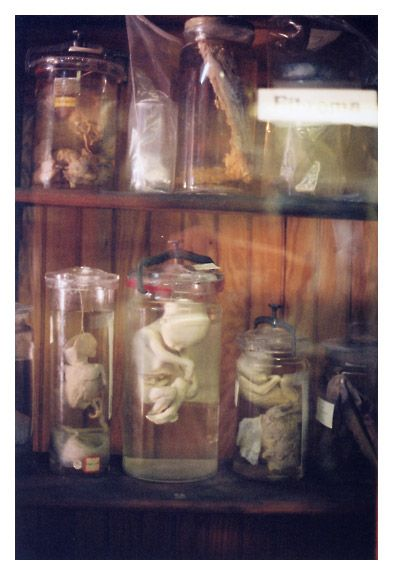 The Mütter Museum: Cabinet of Jars in The Tumour Room