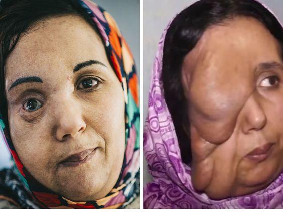 La nueva cara de Samira la mujer elefante que llegó de Marruecos