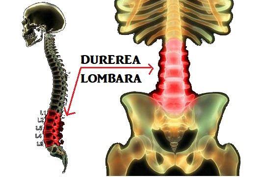 durere lombara tratament